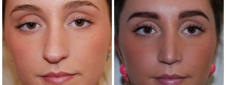 Rhinoplasty UK